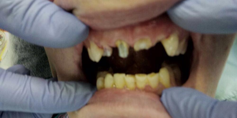 Лечение и протезирование зубов мостовидным протезом на 4 зуба
