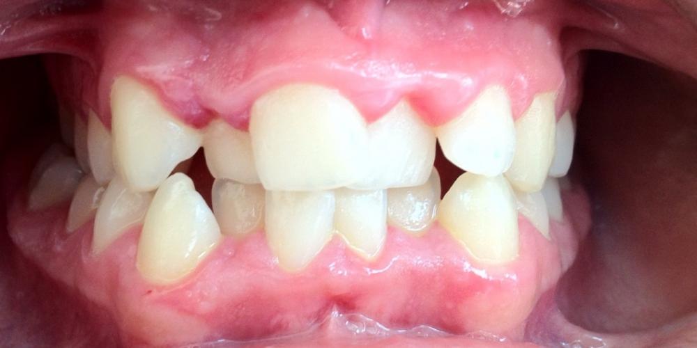 Работа по исправления прикуса зубов