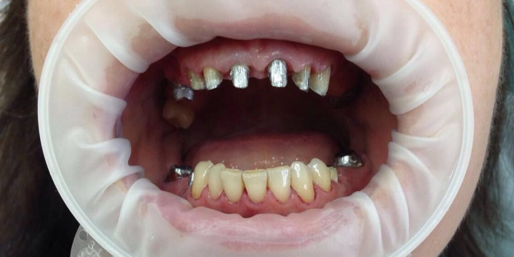 Лечение и протезирование зубов мостовидным протезом на 7 зубов