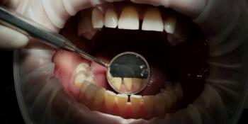 Комплекстная чистка зубов Air-flow + ультразвук + фторирование фото после лечения