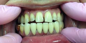 Лечение и протезирование зубов на нижней челюсти фото после лечения