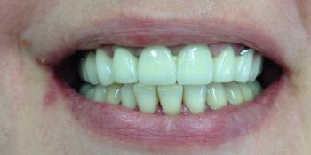 Лечение и протезирование зубов мостовидным протезом на 7 зубов фото после лечения