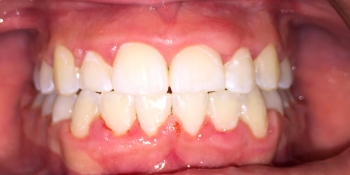 Работа по исправления прикуса зубов фото после лечения