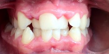 Работа по исправления прикуса зубов фото до лечения