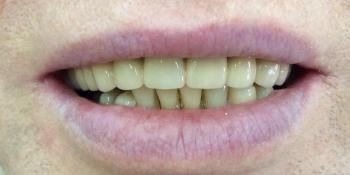 Лечение и протезирование зубов мостовидным протезом на верхнюю челюсть фото после лечения