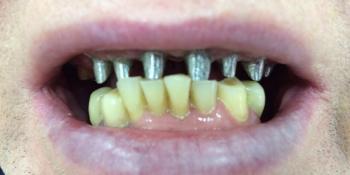Лечение и протезирование зубов мостовидным протезом на верхнюю челюсть фото до лечения