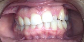 Исправление прикуса зубов брекетами фото до лечения