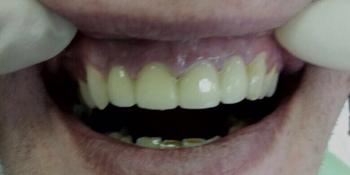 Лечение и протезирование зубов мостовидным протезом на 4 зуба фото после лечения