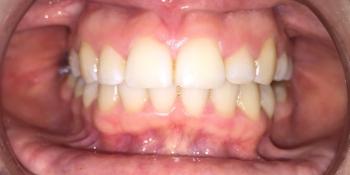 Исправление прикуса зубов брекетами фото после лечения